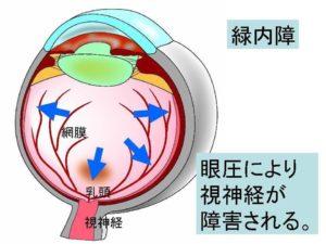 症状 高い 眼 圧